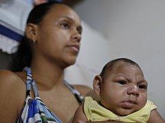 V souvislosti s virem zika se hovoří o zvýšeném výskytu mikrocefalie – poškození mozku lidských plodů.