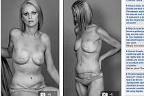Svět obletěly fotografie na první pohled vnadné dvaatřicetileté Australanky Beth Whaangaové, která nafotila své tělo zdecimované léčbou rakoviny.
