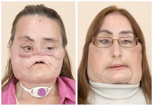 Connie Culpová před a po transplantaci obličeje.
