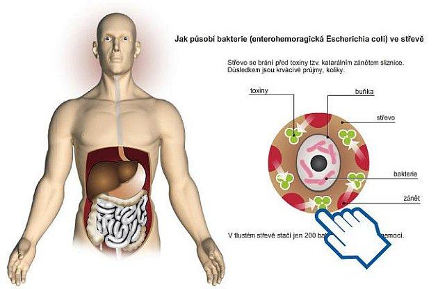 Nebezpečná forma bakterie E.coli.