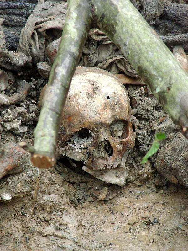 Lebka oběti masakru ve Srebrenici s patrným vstřelem. Exhumovaný hromadný hrob u obce Potočari, Bosna a Hercegovina, červenec 2007