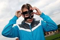 Fotbalový reprezentant Micahl Kadlec s masou na zlomený nos.
