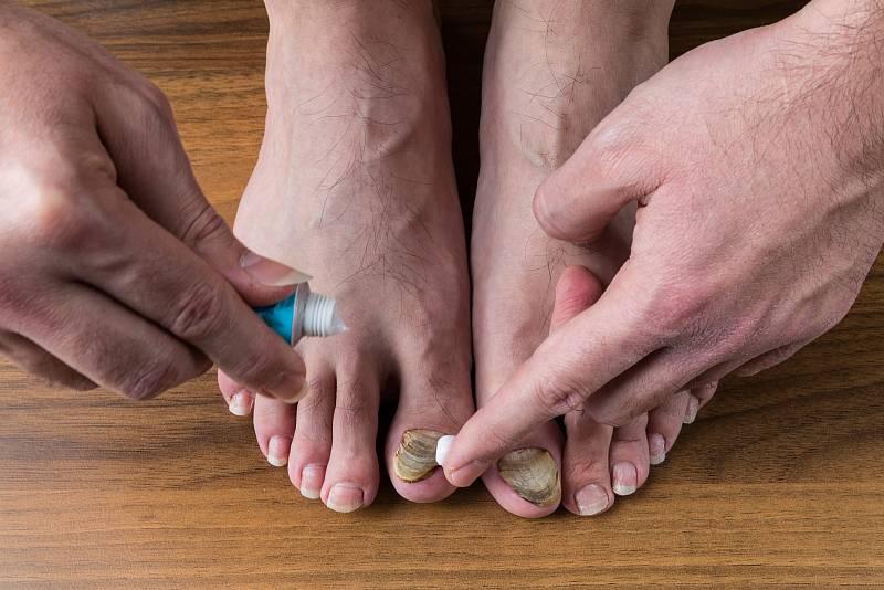 Prevence je základ. Proto ve společných prostorách používejte sandály či žabky a před odchodem z lázní, společných sprch, z krytých bazénů nebo sauny si nohy vždy důkladně umyjte a pořádně je vysušte