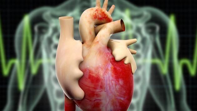 Vědci z pražského Institutu klinické a experimentální medicíny (IKEM) prokázali, že nevhodné tuky v jídelníčku zvyšují vedle cholesterolu také prozánětlivý stav organismu, což riziko infarktu nebo mrtvice ještě zvyšuje.