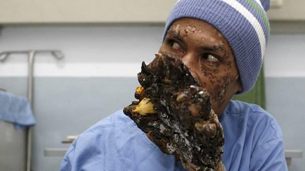 Indonésan Dede se údajně v nemocnici v Bandungu pomalu uzdravuje.