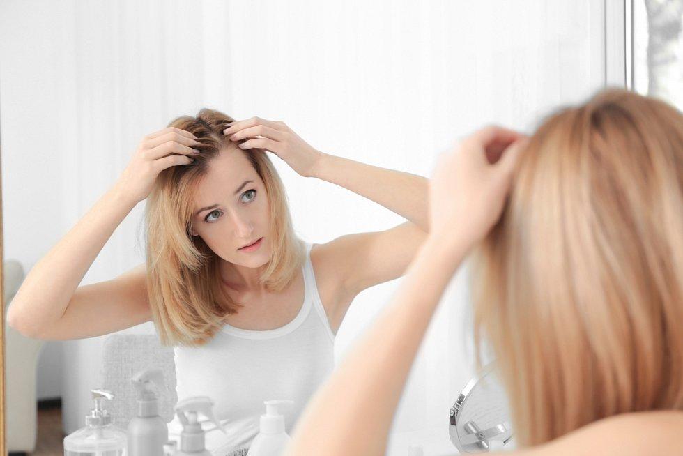 Ztráta vlasů se nevyhýbá ani ženám, sjejich úbytkem se potýká třetina znich, a to především vobdobí přechodu.