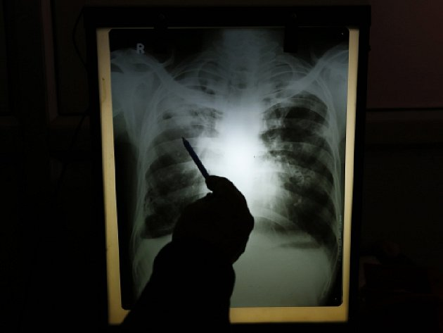 Ačkoli Česko patří k zemím s nejnižším výskytem TBC na světě, začalo v posledních letech mírně přibývat nemocných s multirezistentní formou TBC.