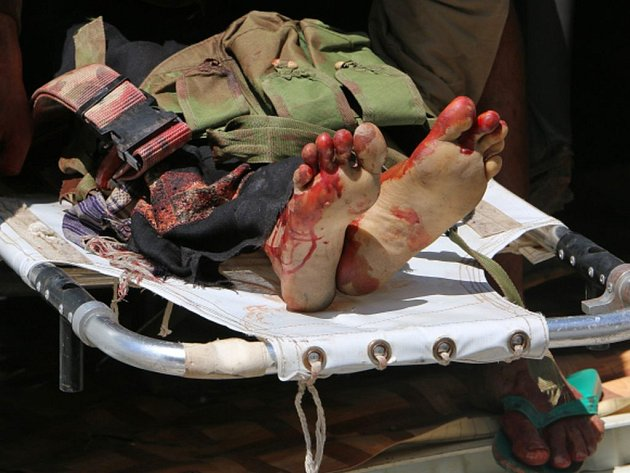 Dva letecké údery, které podnikly letouny arabské koalice útočící na šíitské rebely, zničily v jemenské provincii Saada malé zdravotnické zařízení provozované mezinárodní humanitární organizací Lékaři bez hranic (MSF).