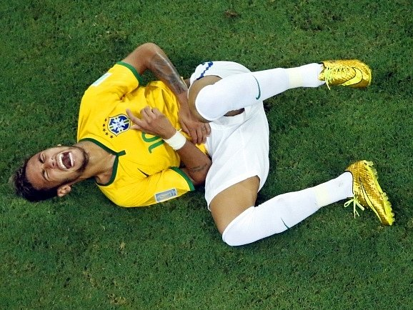 Brazílie - Kolumbie: Neymarovo zranění