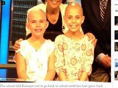 Dívka si na podporu nemocné kamarádky oholila hlavu.