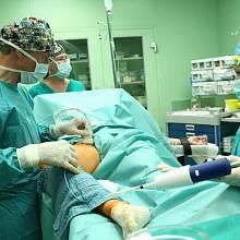 Nová metoda k léčbě křečových žil: lepení