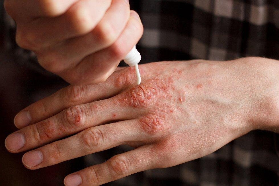 Nejčastěji se vyskytuje u pacientů stěžkou formou lupénky.