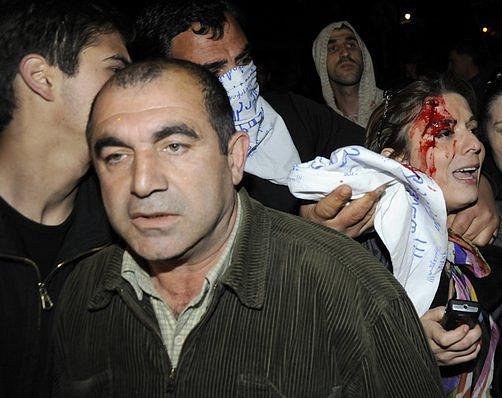 Stoupenci opozice v Gruzii se střetli s policií