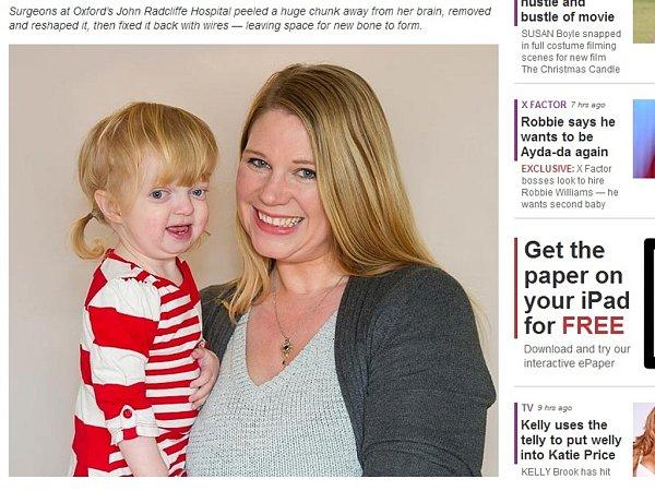 Dvouletá Sofia Timminsová trpí vzácnou genetickou poruchou zvanou Crouzonův syndrom. Na snímku smaminkou.
