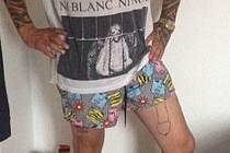 Vytetovaný penis na noze přinesl Stuartu Valentinovi nemalé problémy.