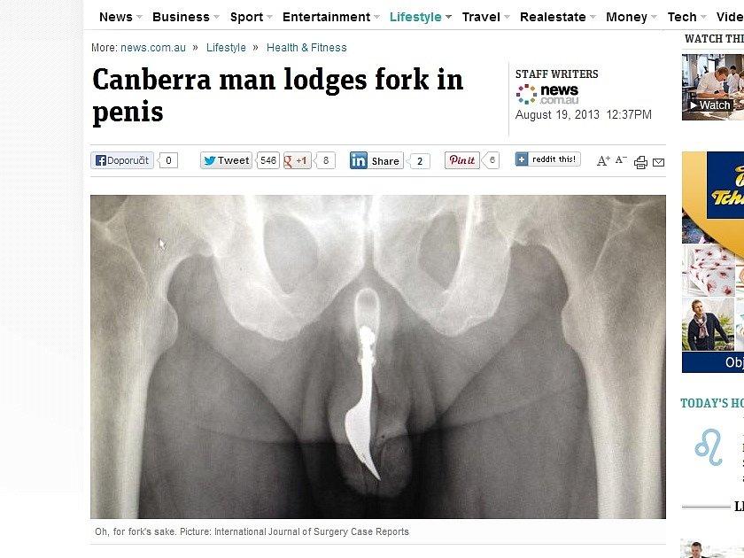 Článek australského serveru s rentgenovým snímkem, který ukazuje vidličku v penisu sedmdesátiletého důchodce
