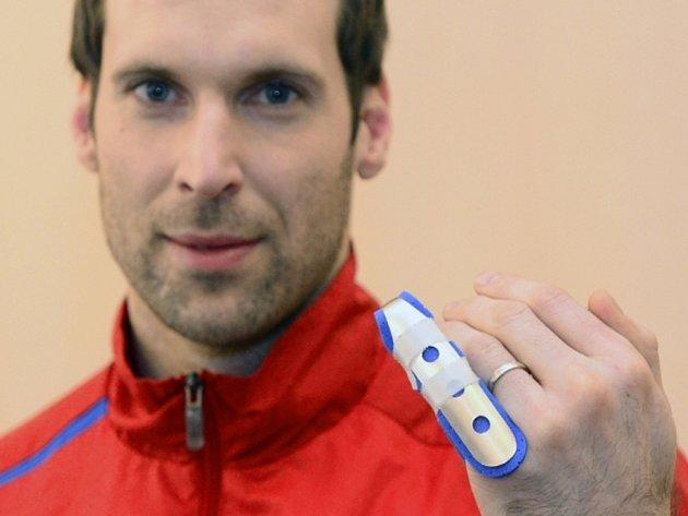 Brankář Petr Čech se zlomeným malíčkem na srazu fotbalové reprezentace.
