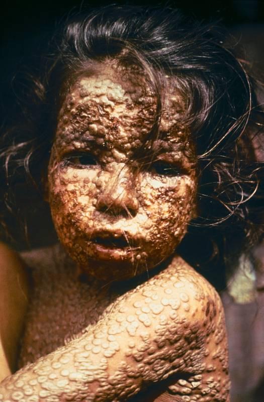 Dívka z Bangladéše, která se v roce 1973 nakazila pravými neštovicemi. O čtyři roky později se podařilo v této zemi nemoc vymýtit