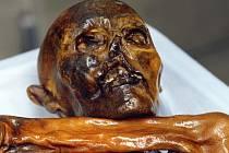 Pravěký muž Ötzi, jehož mimořádně dobře zachované tělo bylo nalezeno před 25 lety v alpském ledovci na pomezí Rakouska a Itálie, trpěl nesnášenlivostí mléčného cukru, laktózy, a měl problémy s krevním oběhem.