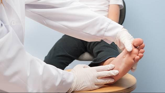 Bradavice jsou nejčastějším virovým onemocněním kůže.