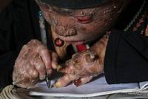 Hadí muž. Tak přezdívají Indonésané 16letému chlapci, který trpí vážnou chorobou, jež mu každý druhý den způsobuje kompletní výměnu kůže.