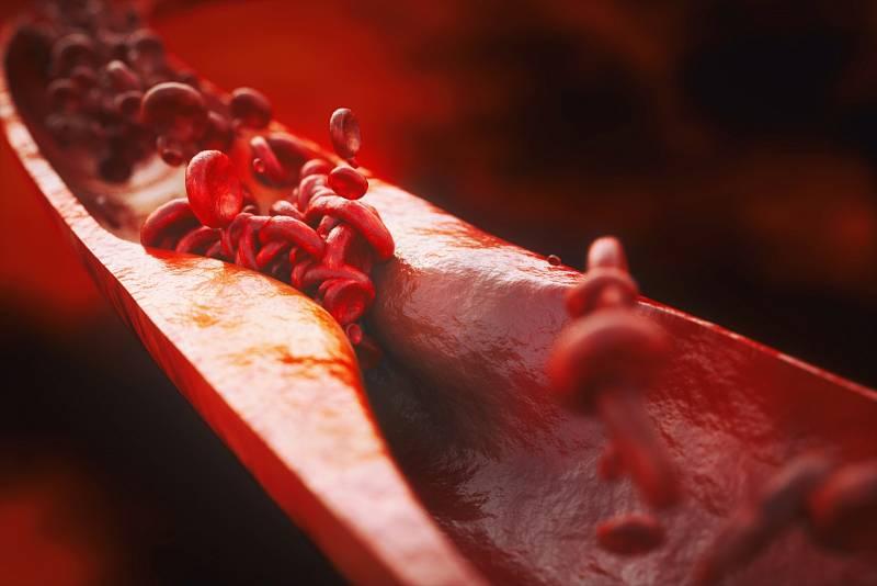 ATEROSKLERÓZA. Rizikové faktory: vysoký cholesterol, vysoký krevní tlak, cukrovka, obezita, nedostatek pohybu, nedostatek estrogenů při předčasné menopauze, kouření.