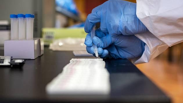 Testování na covid antigenními testy - ilustrační foto