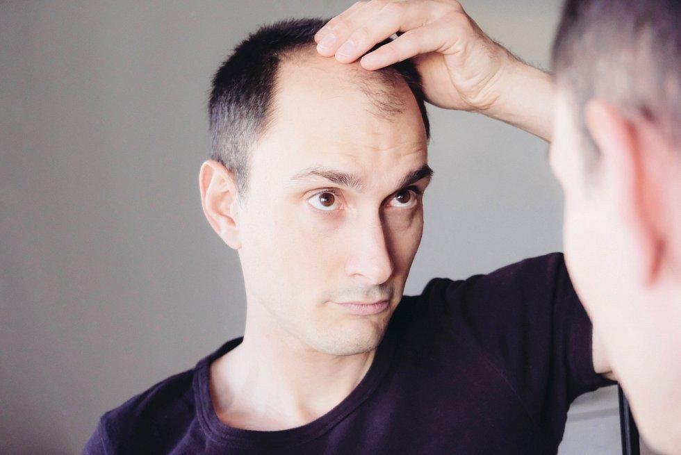 Alopecií trpí vČesku tisíce lidí.
