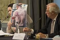 Jedna z vůdkyň běloruské opozice Svjatlana Cichanouská (vlevo) ukazuje fotografii muže zbitého běloruskou policií, vpravo šéf unijní diplomacie Josep Borrell.