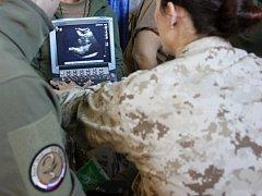 Český polní chirurgický tým už v Iráku začal pomáhat zraněným spojeneckým vojákům.