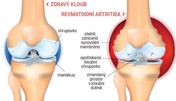 Zdravý kloub x revmatoidní artritida