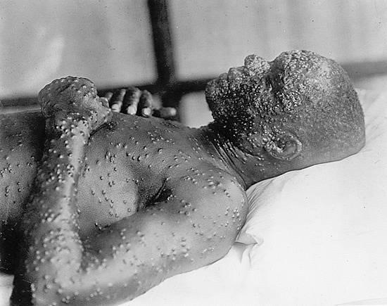 Člověk postižený virem pravých neštovic