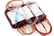 Třetina Čechů alespoň jednou v životě darovala krev