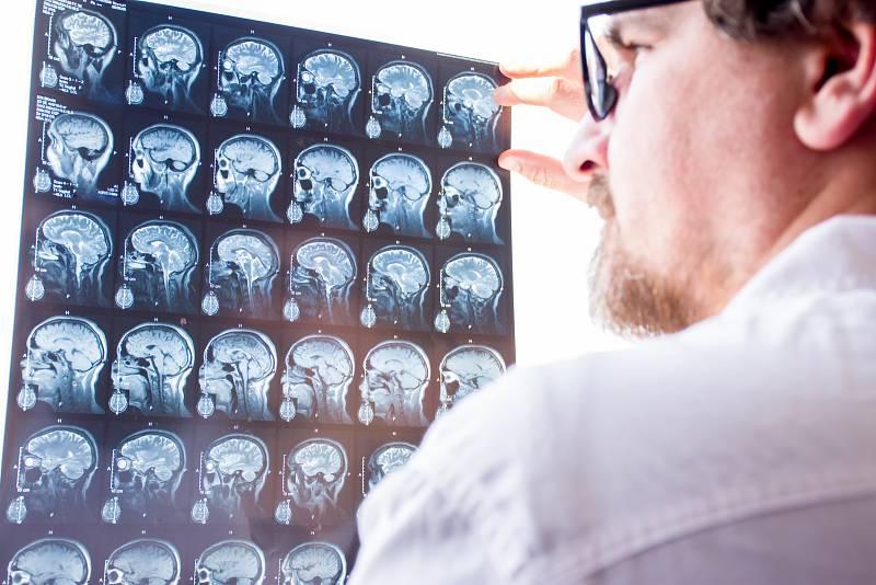 Stavy po úrazech mozku mohou vést k epilepsii a jsou zodpovědné asi za 10 % všech případů epilepsie.