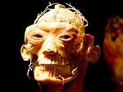 Na exponátech jsou vidět jednotlivé vrstvy těla, od kůže až po vnitřní orgány, což mnohdy vzbuzuje hodně protichůdné reakce návštěvníků.
