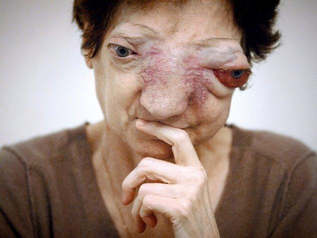 Chantal Sébireová marně žádala o eutanazii kvůli své nemoci.