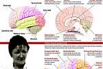 Mozek a jeho funkce
