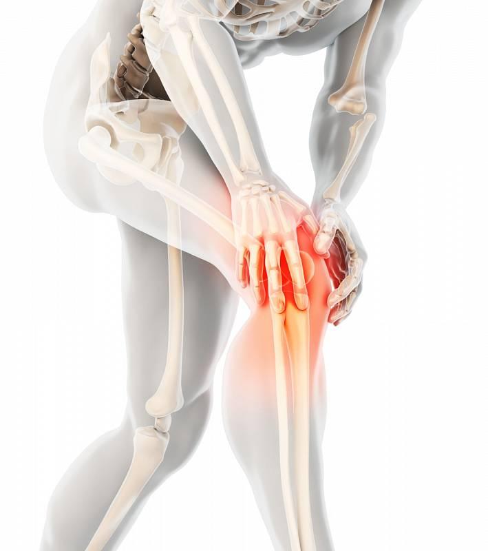 Počátky revmatoidní artritidy se projevují bolestí a otokem kloubů, nejčastěji kolenních a těch u prstů a ruky. Onemocnět ale mohou skoro všechny klouby v těle