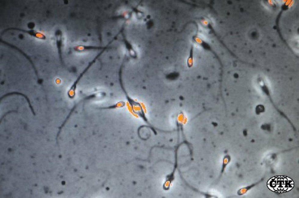 Spermie, sperma, oplodnění, ilustrační foto