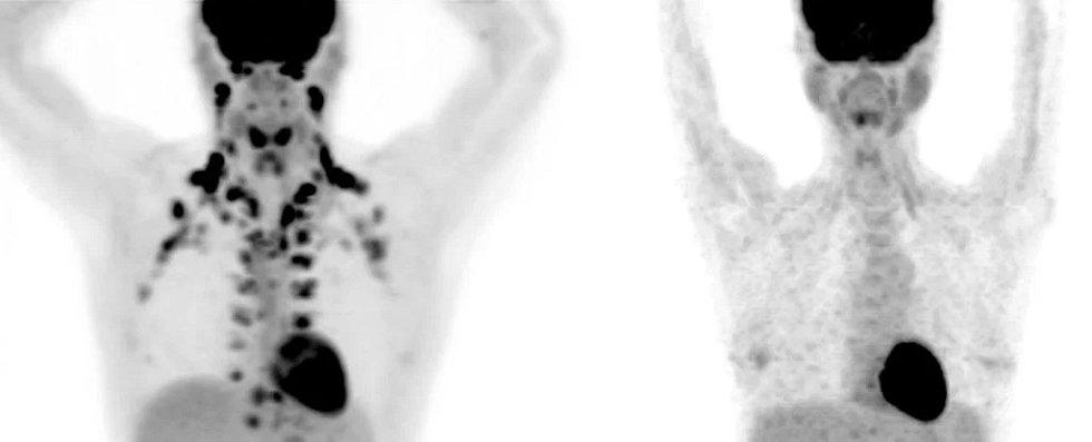 Snímky z pozitronové emisní tomografie ukazují rozdíl mezi těly s velkým podílem hnědého tuku (vlevo) a s jeho nedostatkem