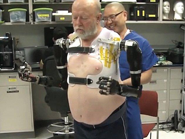 Vědci dali muži dárek. Po 40 letech měl ruce
