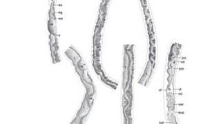 rák szarkóma ewing milyen gyógyszerrel lehet megszüntetni a férgeket