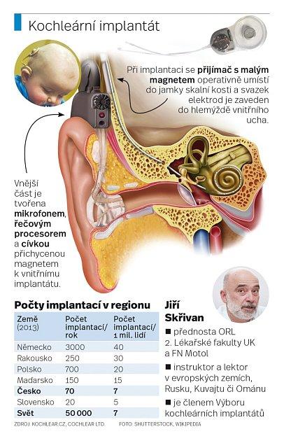 Kochleární implantát.