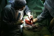 Moderní vědecké postupy potvrzují, že ledviny a další lidské orgány darované k transplantaci se budou zřejmě moci používat vícekrát.