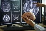 Některé buňky v lidském mozku zesilují svou aktivitu i poté, co člověk zemře.