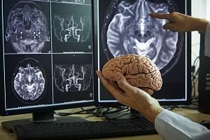 Osmašedesát miliard neuronů a hmotnost téměř 1,3 kilogramu. Tak se dá jednoduše charakterizovat houbovitá hmota, která tvoří mozek průměrného Homo sapiens.