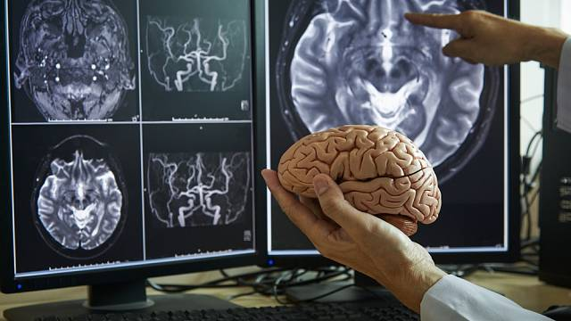 Lidský mozek - Ilustrační foto