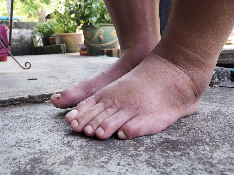 Plísňová onemocnění jsou velmi nakažlivá, takže nechtěnou pozornost si můžete přinést také z bazénu, hotelového pokoje nebo si ji vypěstovat sami ve vlastních ponožkách při špatné hygieně