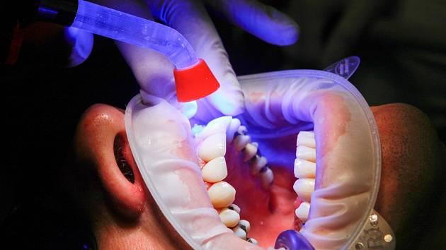 Ošetření u zubního lékaře. Ilustrační foto.