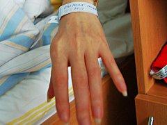 Chomutovská nemocnice dává hospitalizovaným pacientům náramky.
